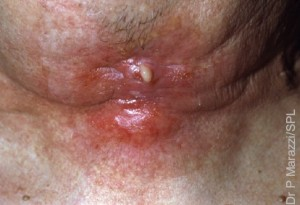 Radiotherapy burn on the neck of a 65-year-old man at the site of radiation treatment for cancer of the larynx (voice box). Smoking and excessive alcohol use can cause laryngeal cancer. Small tumours can be treated by radiotherapy, the use of radiation, which destroys the cancer cells. However, radiotherapy also results in small burns to the surface of the skin, which may become infected.