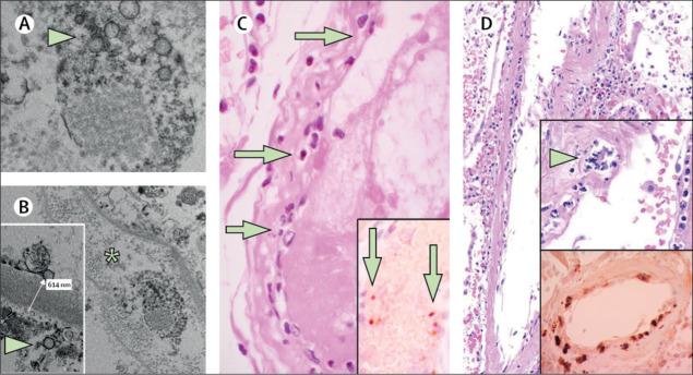 Patología de la disfunción de las células endoteliales en COVID-19